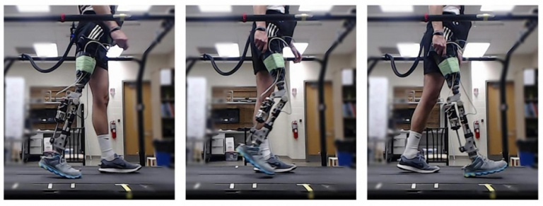 Powered Prosthetic Knee Users Able to Walk in Minutes