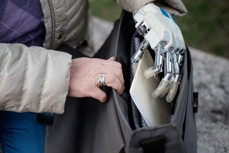 Next-Generation Bionic Hand Restores Sense of Touch